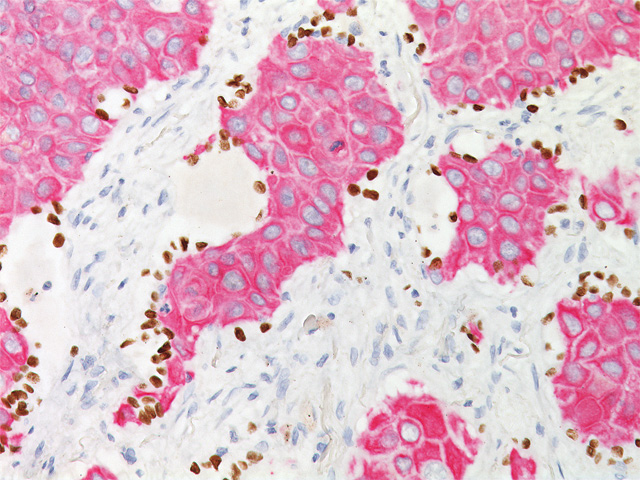 Lung squamous cell carcinoma stained with TTF-1 (DAB) + CK5 (FR)