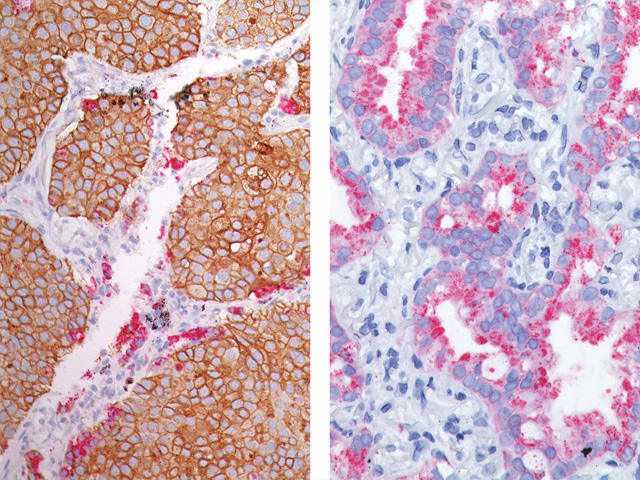 (L) Lung SqCC and Lung adenocarcinoma (R) stained Desmoglein 3 (DAB) + Napsin A (FR)