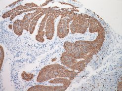 Lung squamous cell carcinoma stained with CK5 antibody
