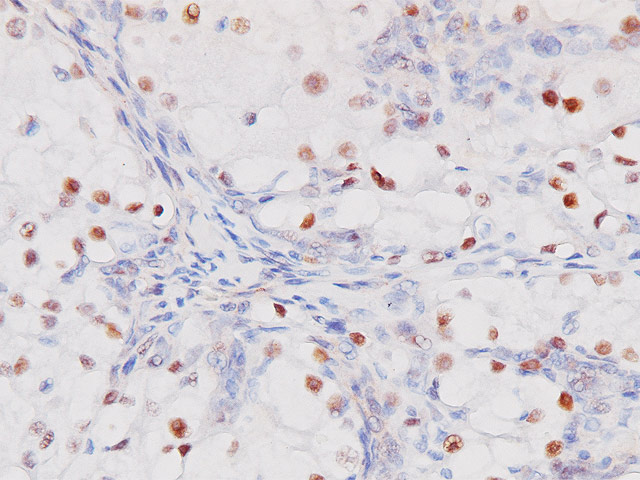 Renal cell carcinoma stained with PAX8 antibody (M)