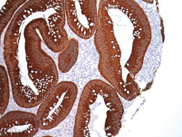 Colon cancer stained with Pan Cytokeratin [AE1/AE3] antibody