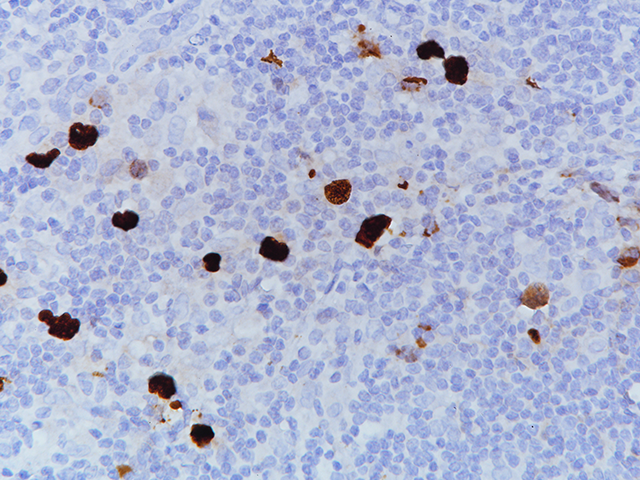 EBER on Hodgkin's lymphoma