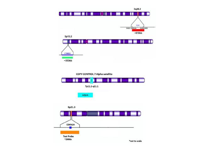 TERC (3q26.2) Red/ 5p15.2 Green/CDKN2A (9p21.3) Orange/CC 7 Aqua