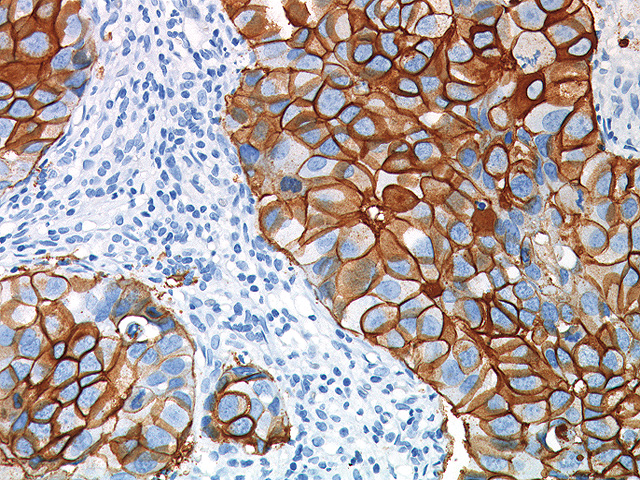 Betazoid DAB Chromogen Kit staining breast cancer with c-erbB-2