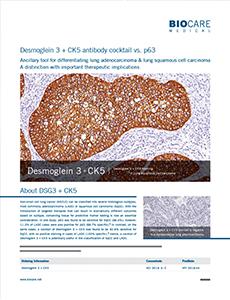 DSG3+CK5