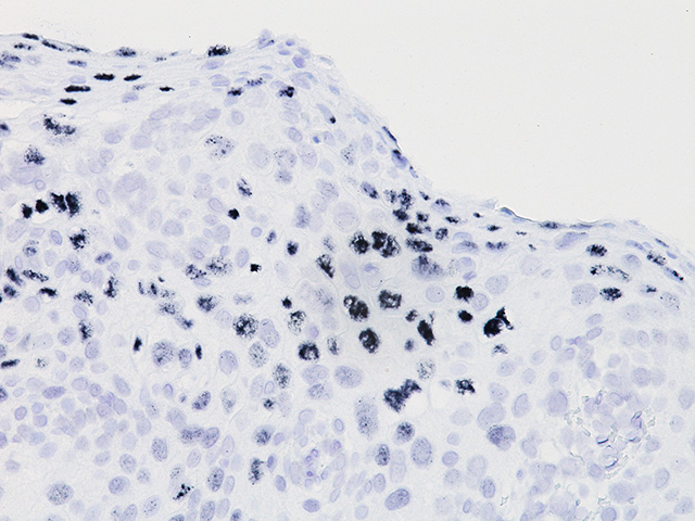 HPV18