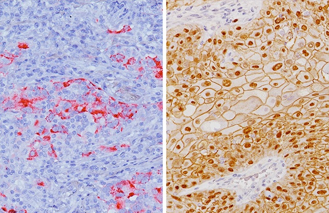 Lung adenocarcinoma stained with Desmoglein