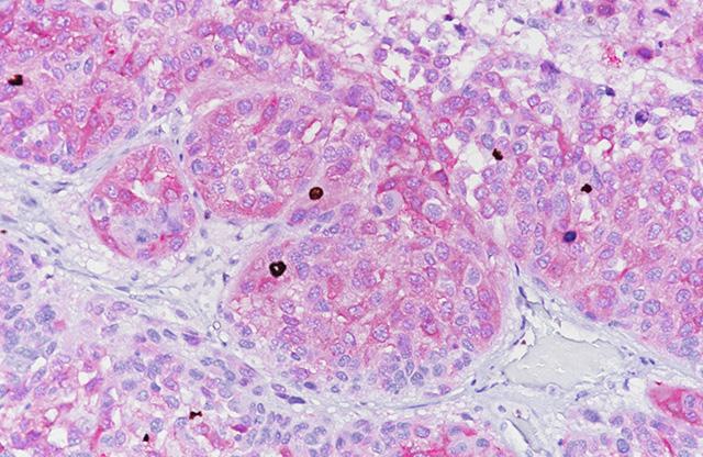 Melanoma labeled with Biocare's melanoma cocktail
