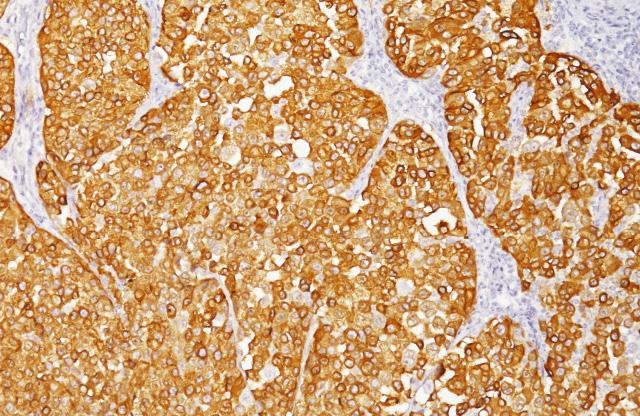 Melanoma labeled with HMB45 + MART-1 + Tyrosinase