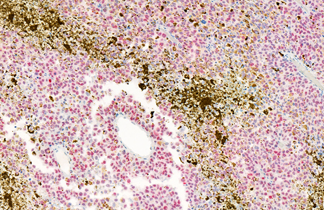 Non-metastatic melanoma stained with PRAME (Red)