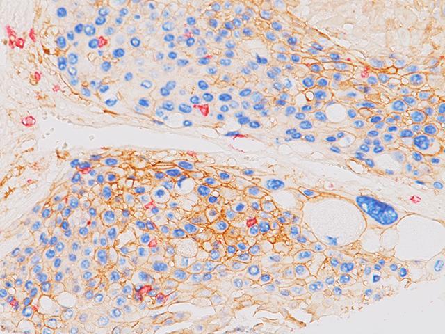 Lung squamous carcinoma