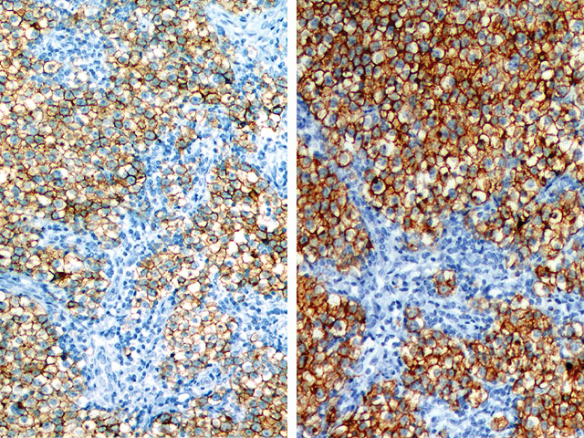 CD117, 1:800 in standard PBS diluent (LEFT), compared 1:800 in Biocare's Renoir Red (RIGHT).