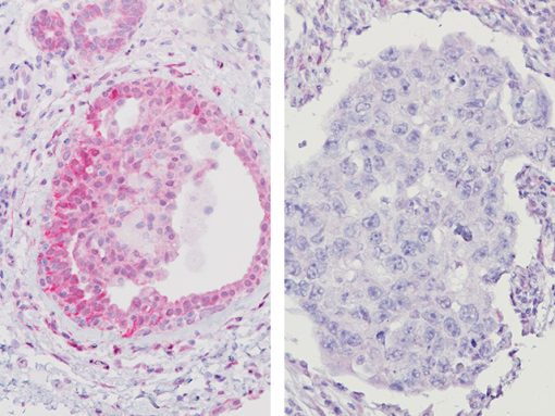 Breast cancer (DCIS) with (L) PTEN deletion & (R) PTEN staining