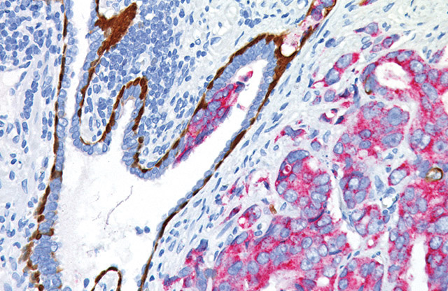 Prostate cancer and prostatic intraepithelial neoplasia