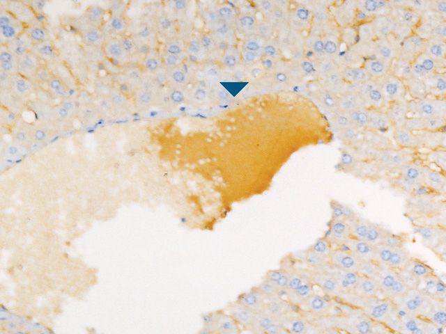 Mouse liver without Rodent Block and XR Factor