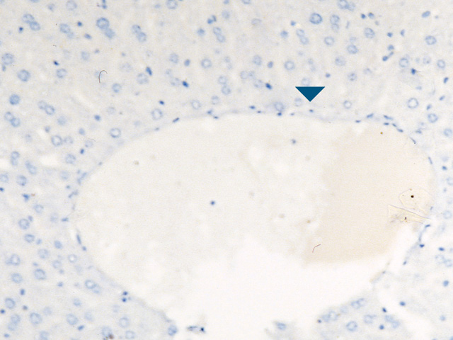 Mouse liver with Rodent Block and XR Factor