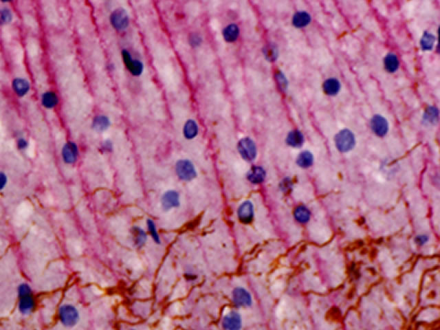 Rat and Mouse Double Stain Polymer: Mouse Neurofilament and rabbit GFAP on rat brain