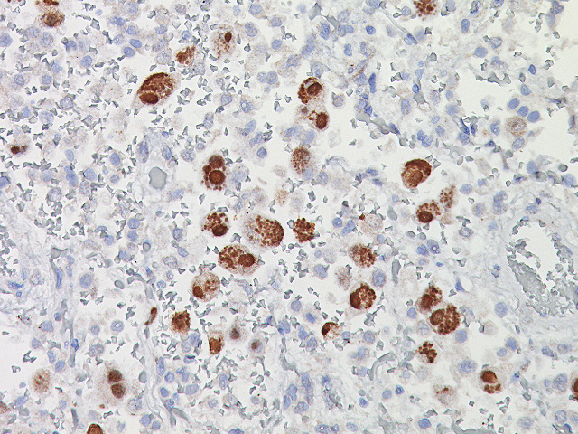 Cytomegalovirus (CMV) Probe - Staining CMV infected lung cells