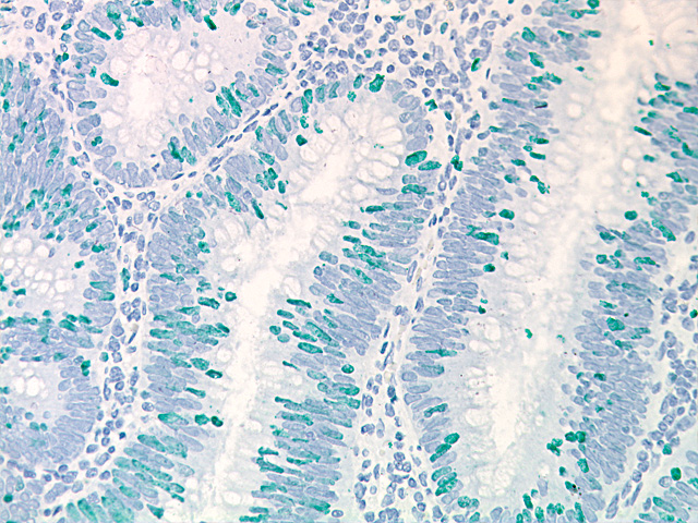 Vina Green Chromogen Kit staining colon cancer with Ki-67