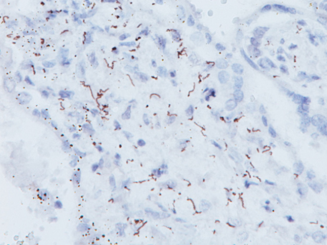 Spirochete infected tissue stained with Treponema pallidum antibody (Spirochete)