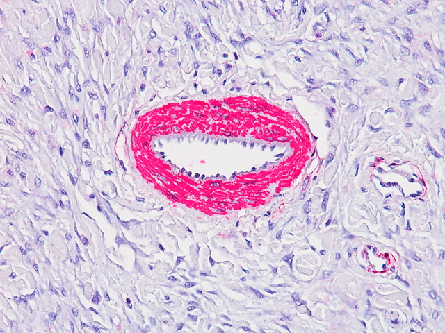 Muscle Specific Antigen on Equine Artery