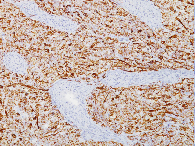 Rhabdomyosarcoma stained with Desmin antibody