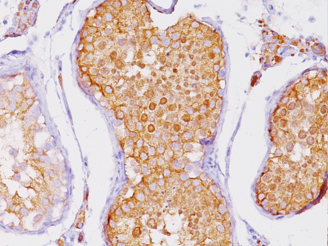 Testicular tissue stained with Inhibin Alpha antibody