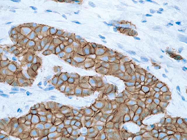 Breast cancer stained with E-cadherin mouse antibody