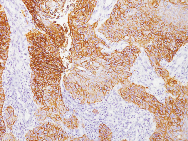 Lung cancer stained with Epidermal Growth Factor Receptor antibody