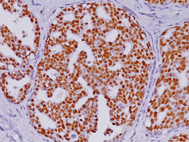 Breast cancer stained with Estrogen-Receptor-ER-Antibody [6F11 + SP1]