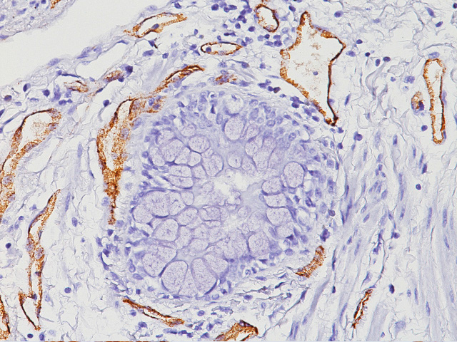 Blood vessels in lung stained with Factor VIII antibody