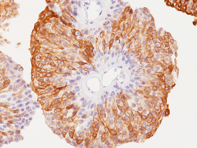 Urothelial carcinoma stained with Uroplakin II + Uroplakin III antibody