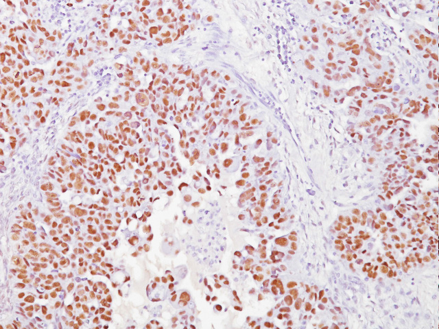 Ovarian cancer stained with WT1 antibody  (Wilms' Tumor)