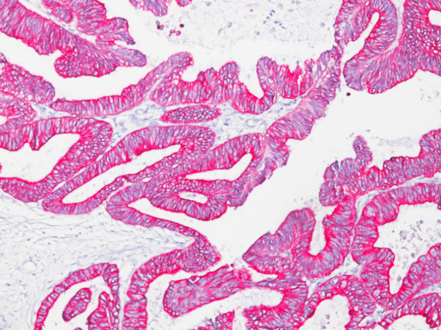 Colon cancer stained with Pan Cytokeratin [Lu-5] antibody