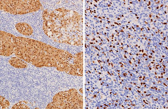 melanoma stained with MART-1 + Tyrosinase and SOX10