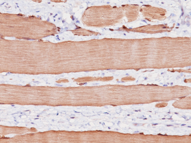 Striated muscle stained with Myoglobin antibody