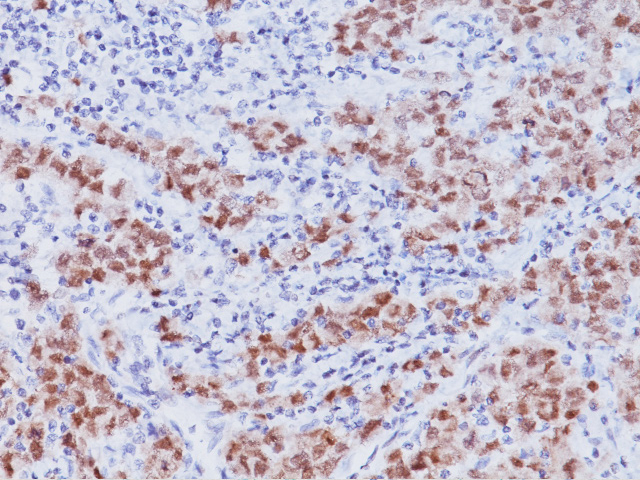 Seminoma stained with Oct-3/4 antibody