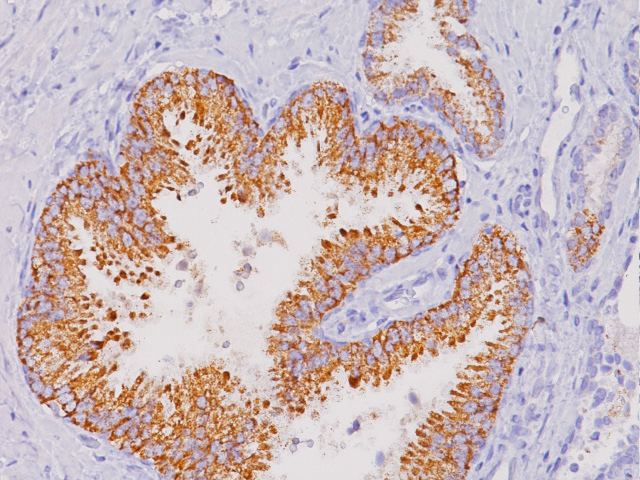 Prostate cancer stained with P504S (P) antibody