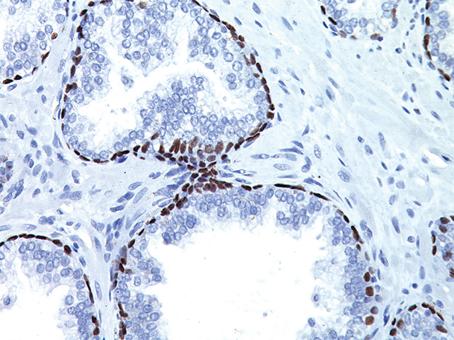 Prostate tissue stained with p63 antibody