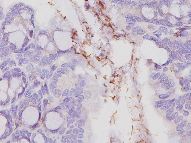Small intestine stained with Helicobacter pylori Antibody