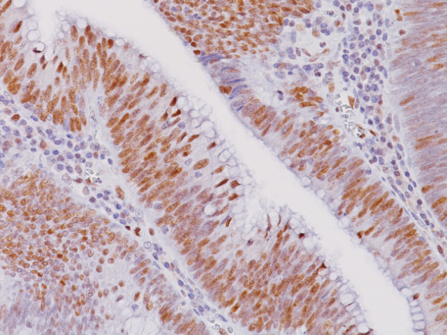 Squamous cell carcinoma stained with Retinoblastoma antibody