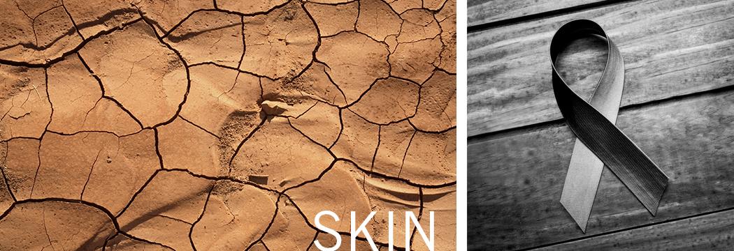 Skin Cancer Antibodies