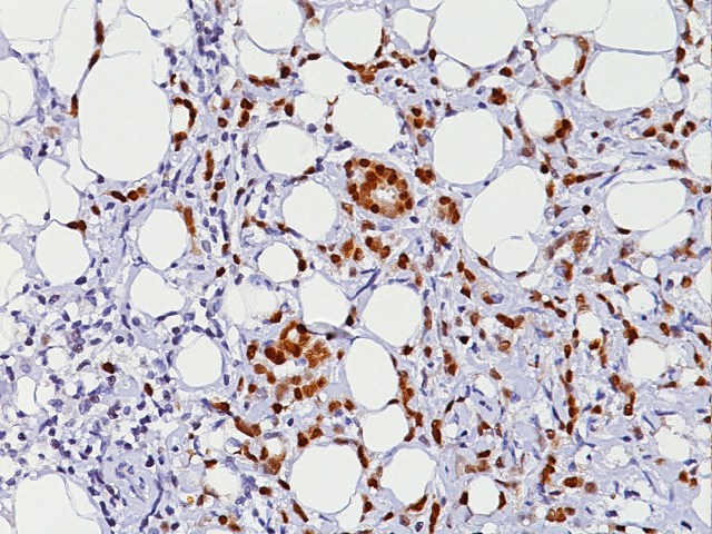 Breast cancer stained with Progesterone Receptor [PgR636] antibody