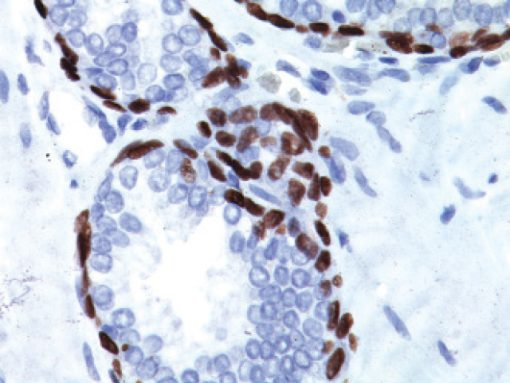 Prostate cancer stained with p63 [4a4] antibody, 2X