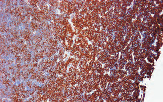 Under fixation resulted in weakening/loss of immunoreactivity toward center of tissue