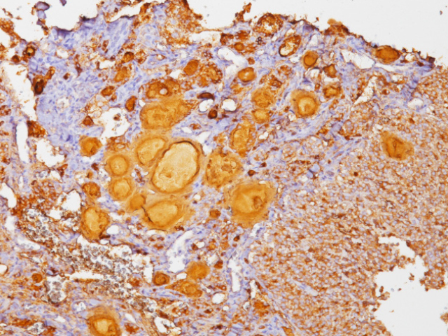 Thyroid cancer stained with Thyroglobulin antibody Cocktail